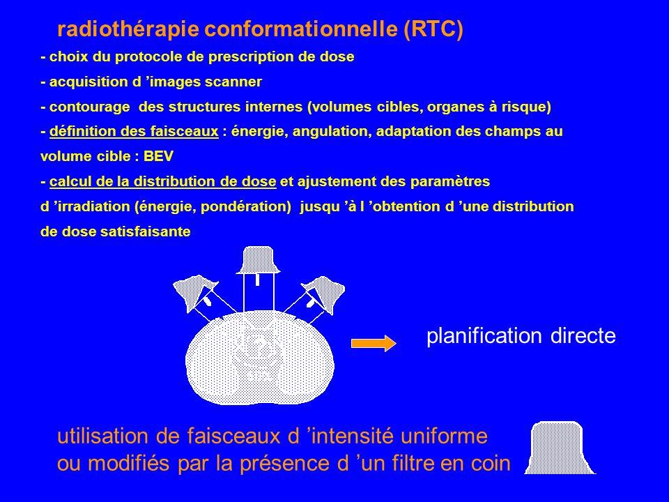 radiothérapie conformationnelle (RTC) - choix du protocole de prescription de dose - acquisition d images scanner - contourage des structures internes