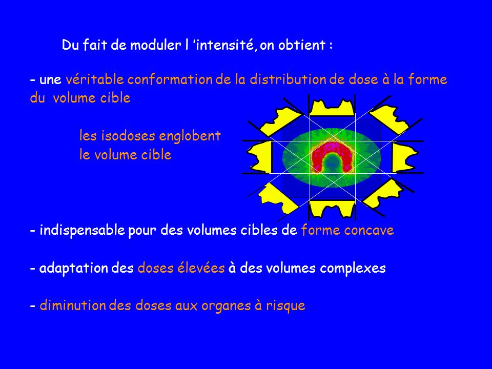 - une véritable conformation de la distribution de dose à la forme du volume cible les isodoses englobent le volume cible - indispensable pour des vol