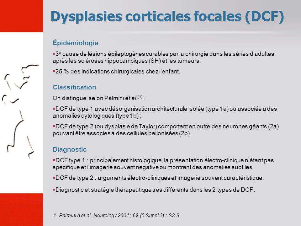 Épidémiologie 3 e cause de lésions épileptogènes curables par la chirurgie dans les séries dadultes, après les scléroses hippocampiques (SH) et les tu