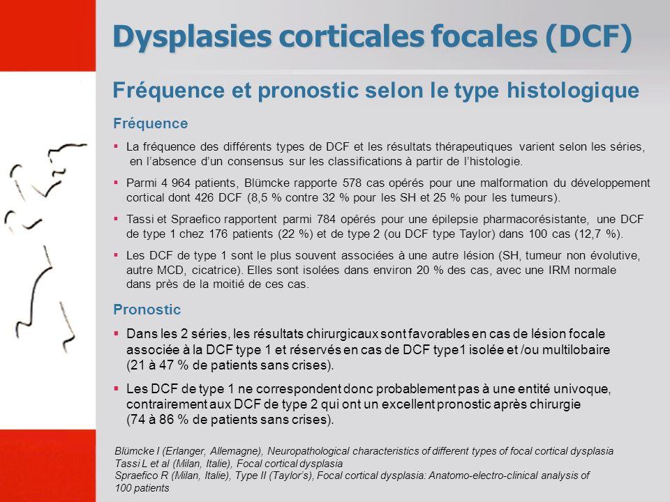 Fréquence et pronostic selon le type histologique Dysplasies corticales focales (DCF) Fréquence La fréquence des différents types de DCF et les résult