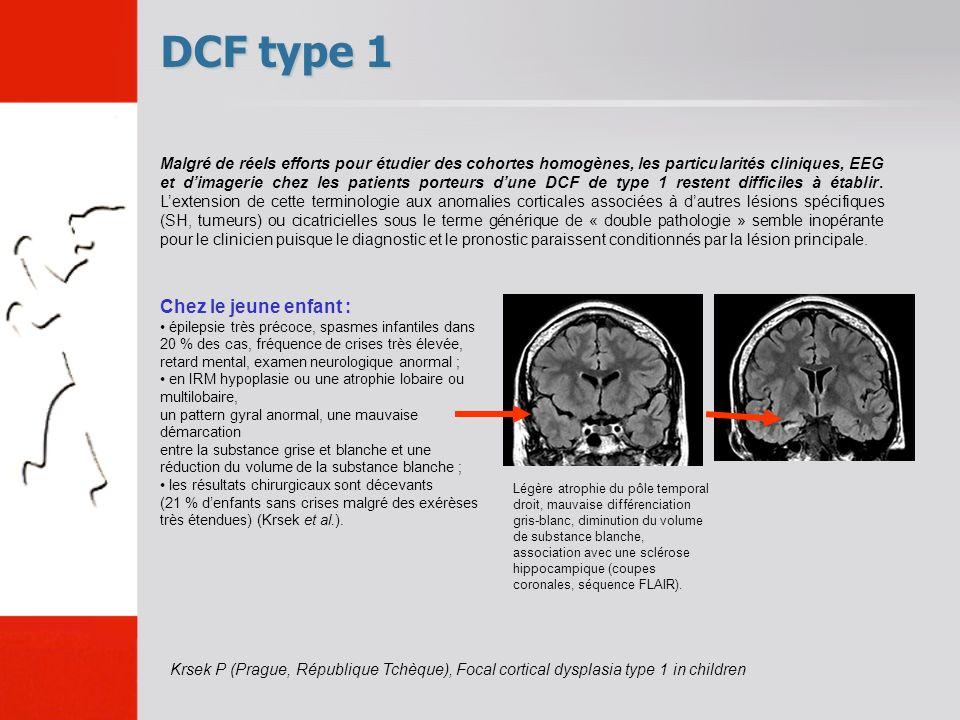 DCF type 1 Chez le jeune enfant : épilepsie très précoce, spasmes infantiles dans 20 % des cas, fréquence de crises très élevée, retard mental, examen