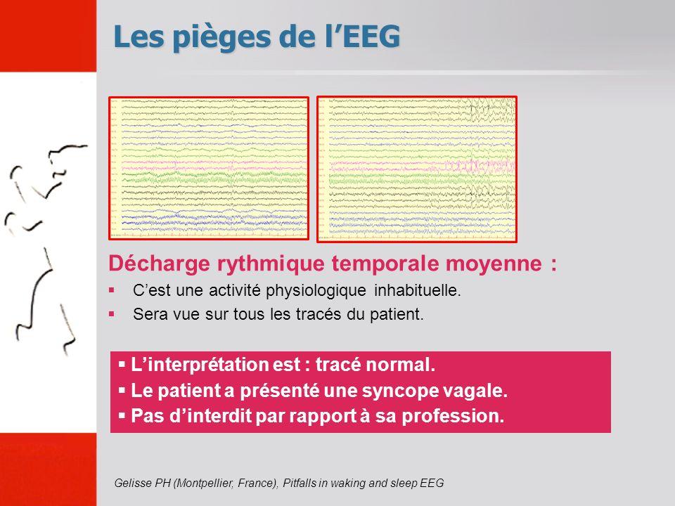 Décharge rythmique temporale moyenne : Cest une activité physiologique inhabituelle. Sera vue sur tous les tracés du patient. Les pièges de lEEG Linte
