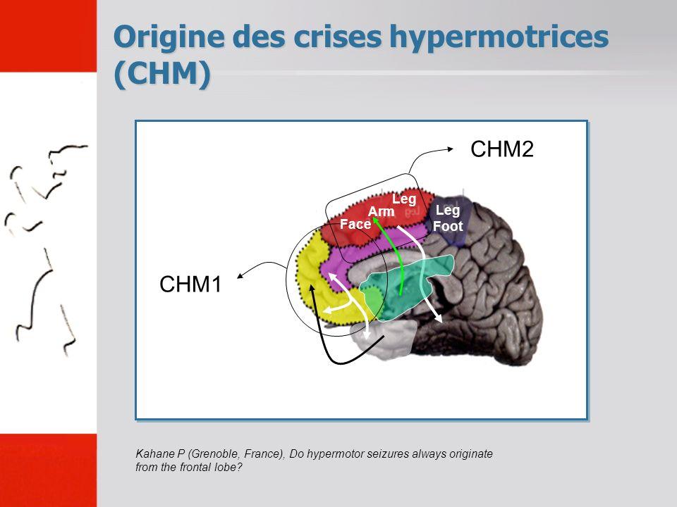 Origine des crises hypermotrices (CHM) Kahane P (Grenoble, France), Do hypermotor seizures always originate from the frontal lobe.