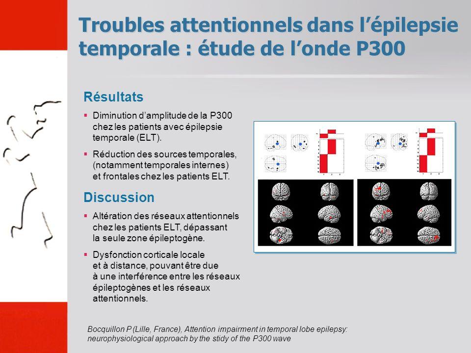 Troubles attentionnels dans lépilepsie temporale : étude de londe P300 Bocquillon P (Lille, France), Attention impairment in temporal lobe epilepsy: neurophysiological approach by the stidy of the P300 wave Résultats Diminution damplitude de la P300 chez les patients avec épilepsie temporale (ELT).