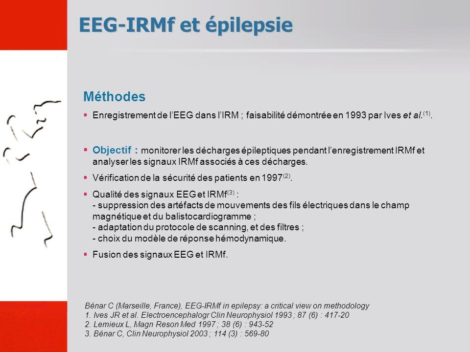 EEG-IRMf et épilepsie Bénar C (Marseille, France), EEG-IRMf in epilepsy: a critical view on methodology 1.