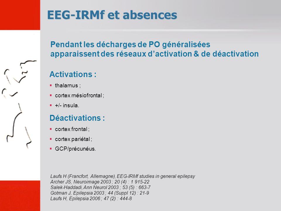 EEG-IRMf et absences Laufs H (Francfort, Allemagne), EEG-IRMf studies in general epilepsy Archer JS, Neuroimage 2003 ; 20 (4) : 1 915-22 Salek-Haddadi, Ann Neurol 2003 ; 53 (5) : 663-7 Gotman J, Epilepsia 2003 ; 44 (Suppl 12) : 21-9 Laufs H, Epilepsia 2006 ; 47 (2) : 444-8 Activations : thalamus ; cortex mésiofrontal ; +/- insula.