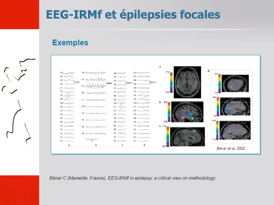 EEG-IRMf et épilepsies focales Bénar C (Marseille, France), EEG-IRMf in epilepsy: a critical view on methodology Exemples Bénar et al. 2002