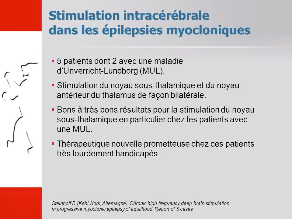 Stimulation intracérébrale dans les épilepsies myocloniques 5 patients dont 2 avec une maladie dUnverricht-Lundborg (MUL). Stimulation du noyau sous-t