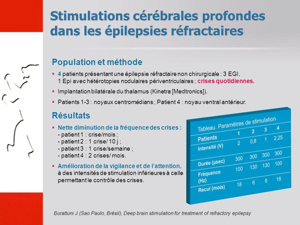 Stimulations cérébrales profondes dans les épilepsies réfractaires Burattuni J (Sao Paulo, Brésil), Deep brain stimulation for treatment of refractory