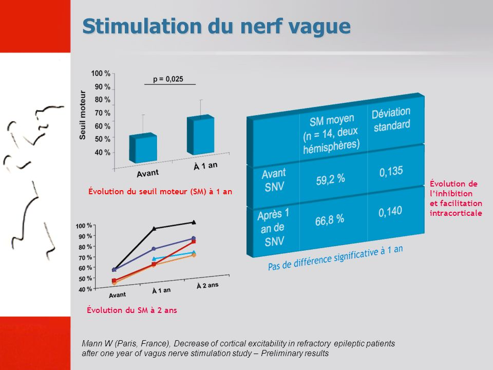 Stimulation du nerf vague Mann W (Paris, France), Decrease of cortical excitability in refractory epileptic patients after one year of vagus nerve sti