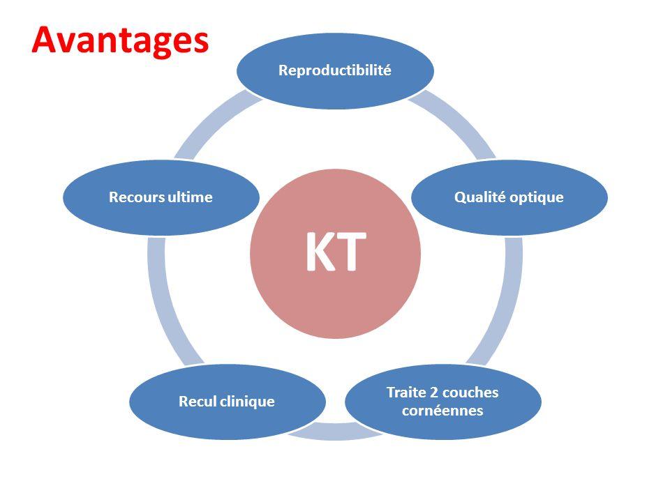 KT ReproductibilitéQualité optique Traite 2 couches cornéennes Recul cliniqueRecours ultime Avantages