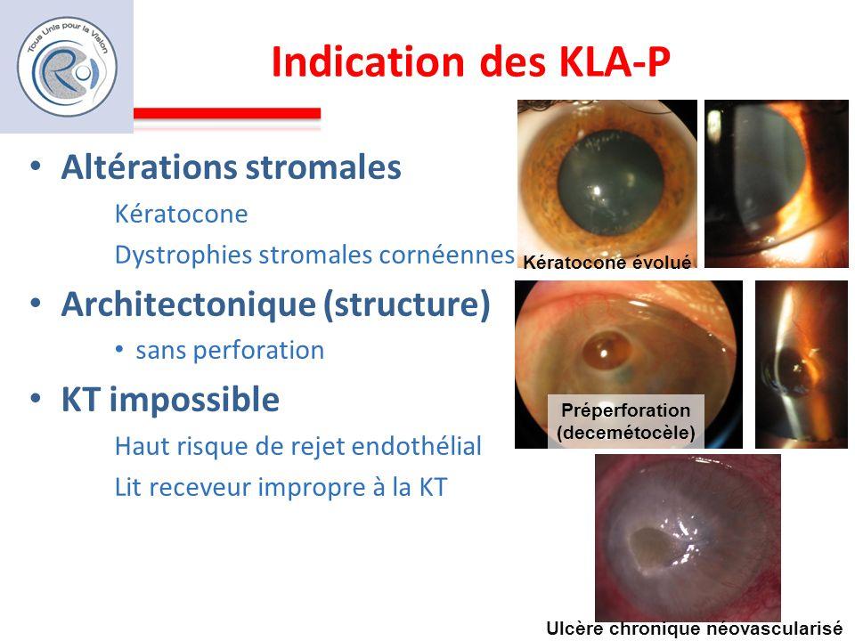 Indication des KLA-P Altérations stromales Kératocone Dystrophies stromales cornéennes Architectonique (structure) sans perforation KT impossible Haut