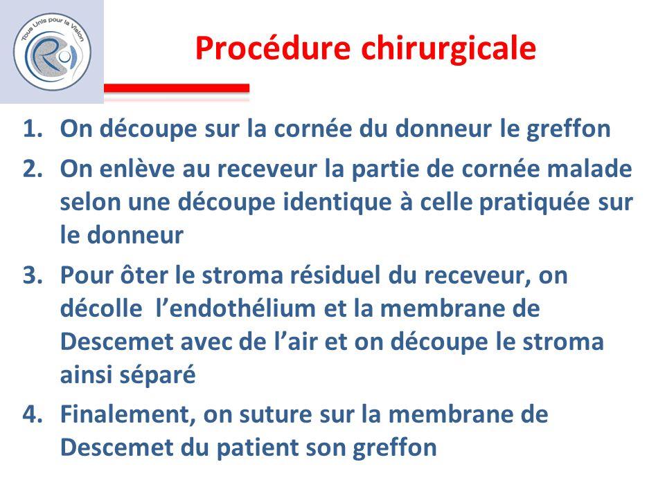 Procédure chirurgicale 1.On découpe sur la cornée du donneur le greffon 2.On enlève au receveur la partie de cornée malade selon une découpe identique