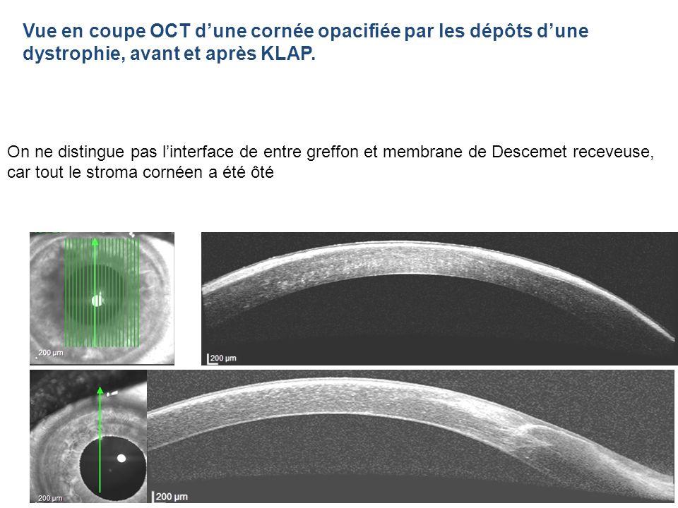On ne distingue pas linterface de entre greffon et membrane de Descemet receveuse, car tout le stroma cornéen a été ôté Vue en coupe OCT dune cornée o
