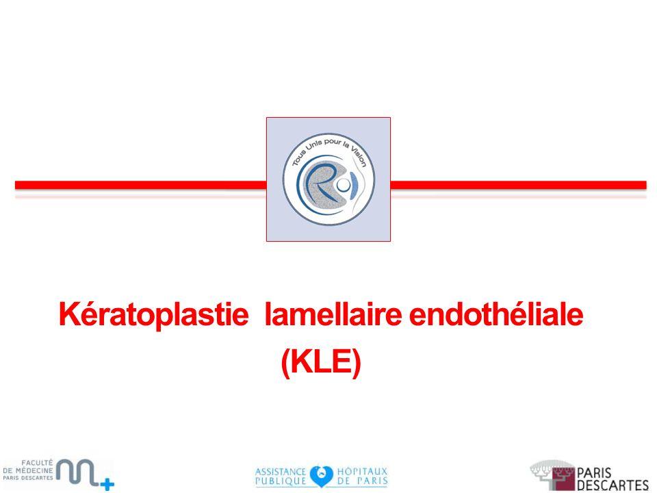 Kératoplastie lamellaire endothéliale (KLE)