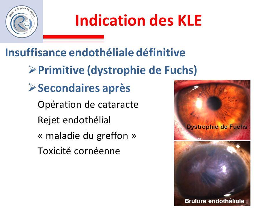 Indication des KLE Insuffisance endothéliale définitive Primitive (dystrophie de Fuchs) Secondaires après Opération de cataracte Rejet endothélial « m