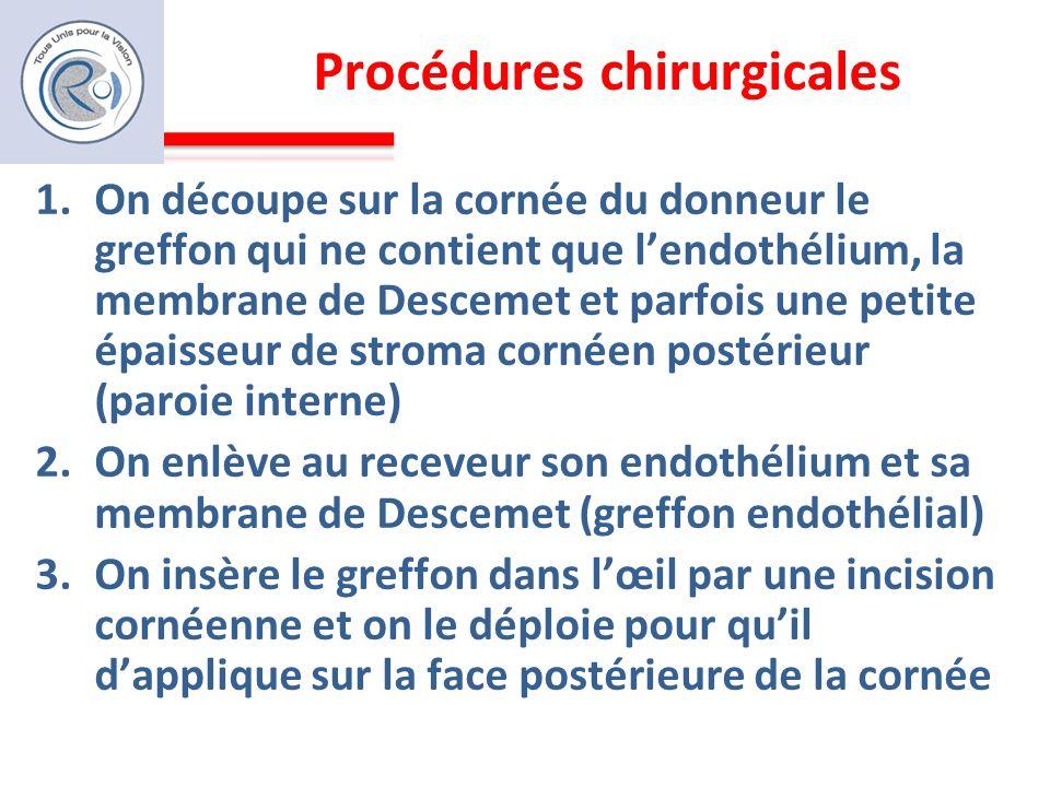 Procédures chirurgicales 1.On découpe sur la cornée du donneur le greffon qui ne contient que lendothélium, la membrane de Descemet et parfois une pet