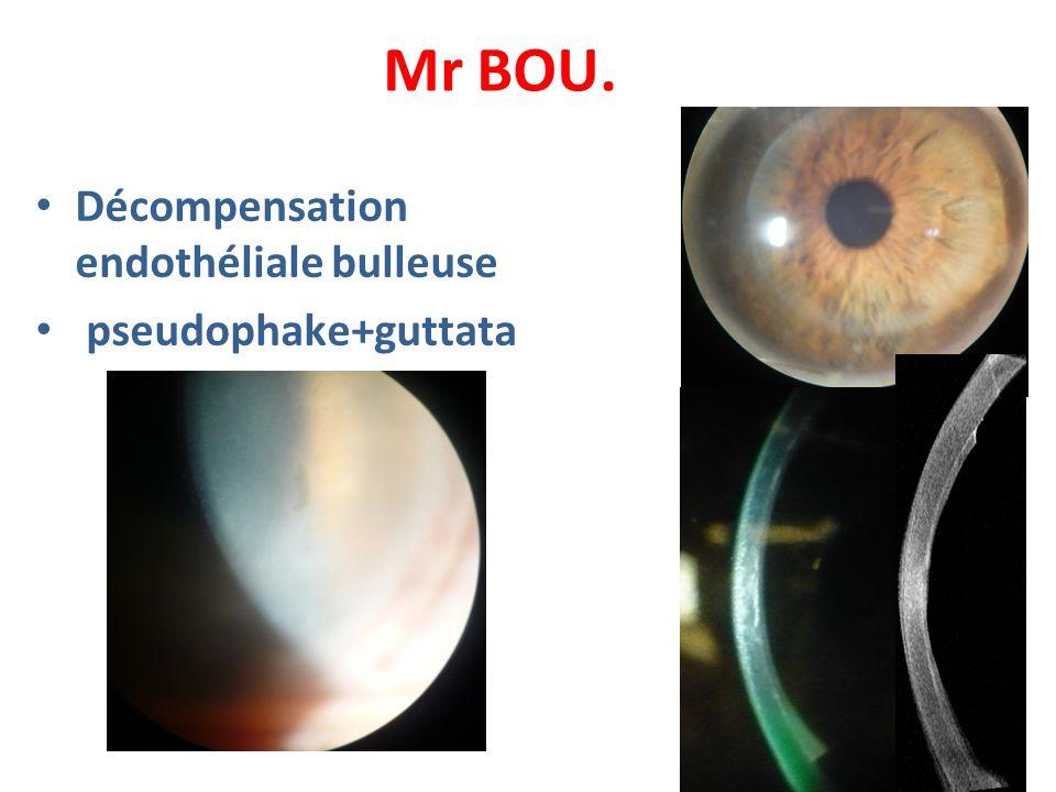 Mr BOU. Décompensation endothéliale bulleuse pseudophake+guttata