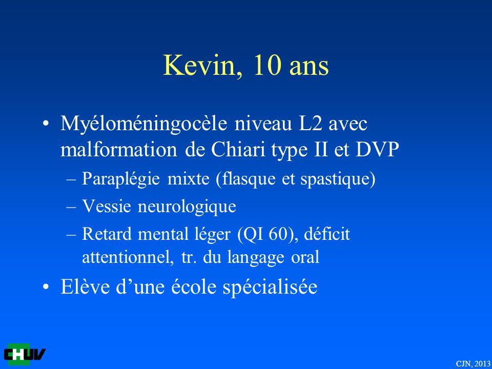 CJN, 2013 Kevin, 10 ans Myéloméningocèle niveau L2 avec malformation de Chiari type II et DVP –Paraplégie mixte (flasque et spastique) –Vessie neurologique –Retard mental léger (QI 60), déficit attentionnel, tr.