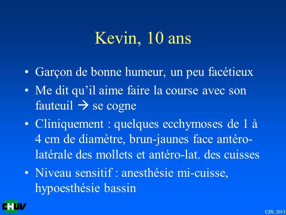 CJN, 2013 Kevin, 10 ans Garçon de bonne humeur, un peu facétieux Me dit quil aime faire la course avec son fauteuil se cogne Cliniquement : quelques ecchymoses de 1 à 4 cm de diamètre, brun-jaunes face antéro- latérale des mollets et antéro-lat.