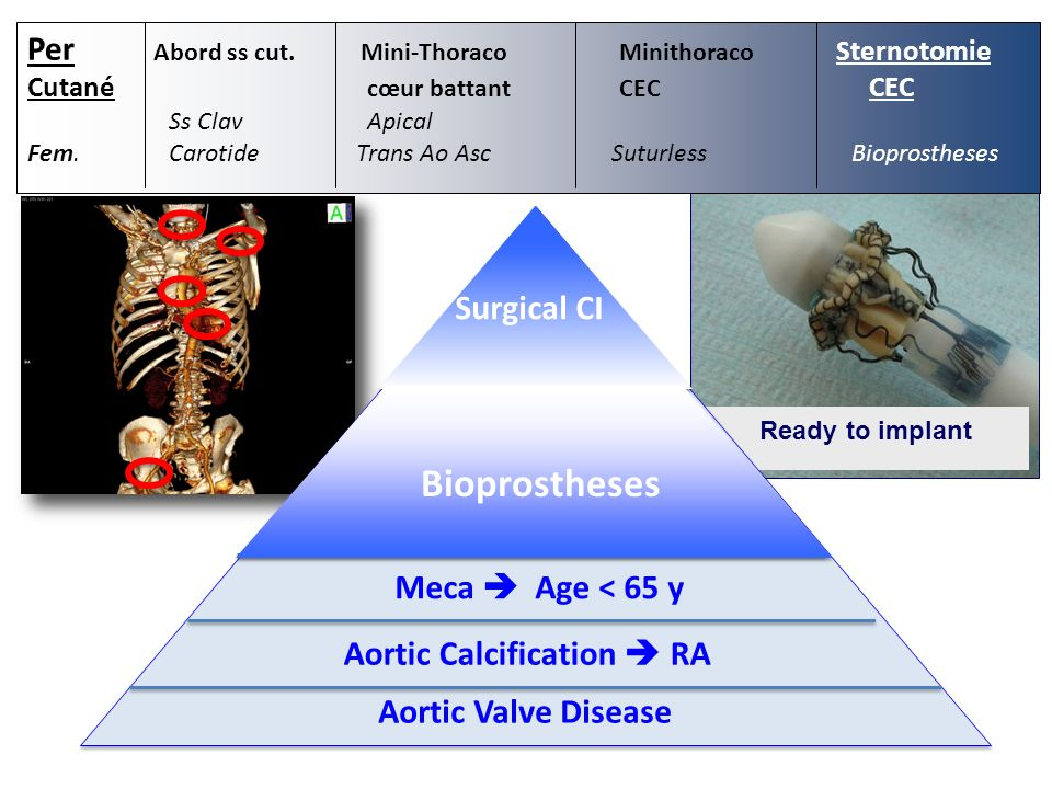 Ready to implant Aortic Valve Disease Aortic Calcification RA Meca Age < 65 y Surgical CI Bioprostheses Per Abord ss cut.