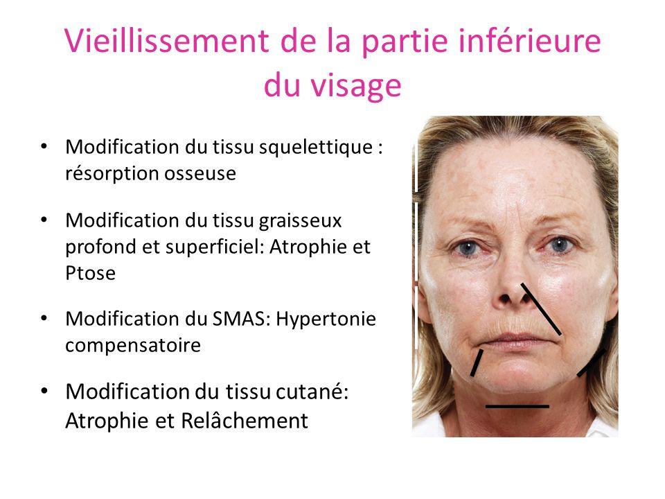 Vieillissement de la partie inférieure du visage Modification du tissu squelettique : résorption osseuse Modification du tissu graisseux profond et su