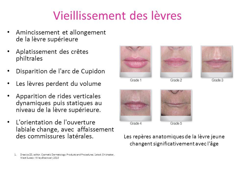 Vieillissement des lèvres Amincissement et allongement de la lèvre supérieure Aplatissement des crêtes philtrales Disparition de l'arc de Cupidon Les