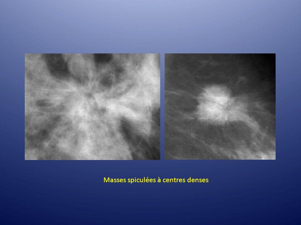 Masses spiculées à centres denses