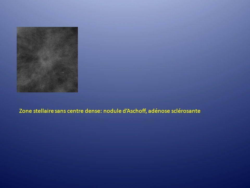 Zone stellaire sans centre dense: nodule dAschoff, adénose sclérosante