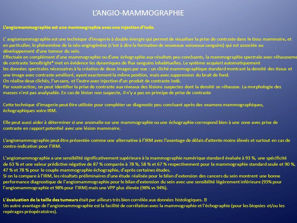 Langiomammographie est une mammographie avec une injection diode. L angiomammographie est une technique d'imagerie à double énergie qui permet de visu