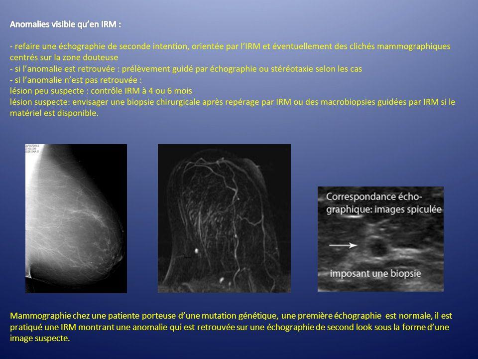 Mammographie chez une patiente porteuse dune mutation génétique, une première échographie est normale, il est pratiqué une IRM montrant une anomalie q