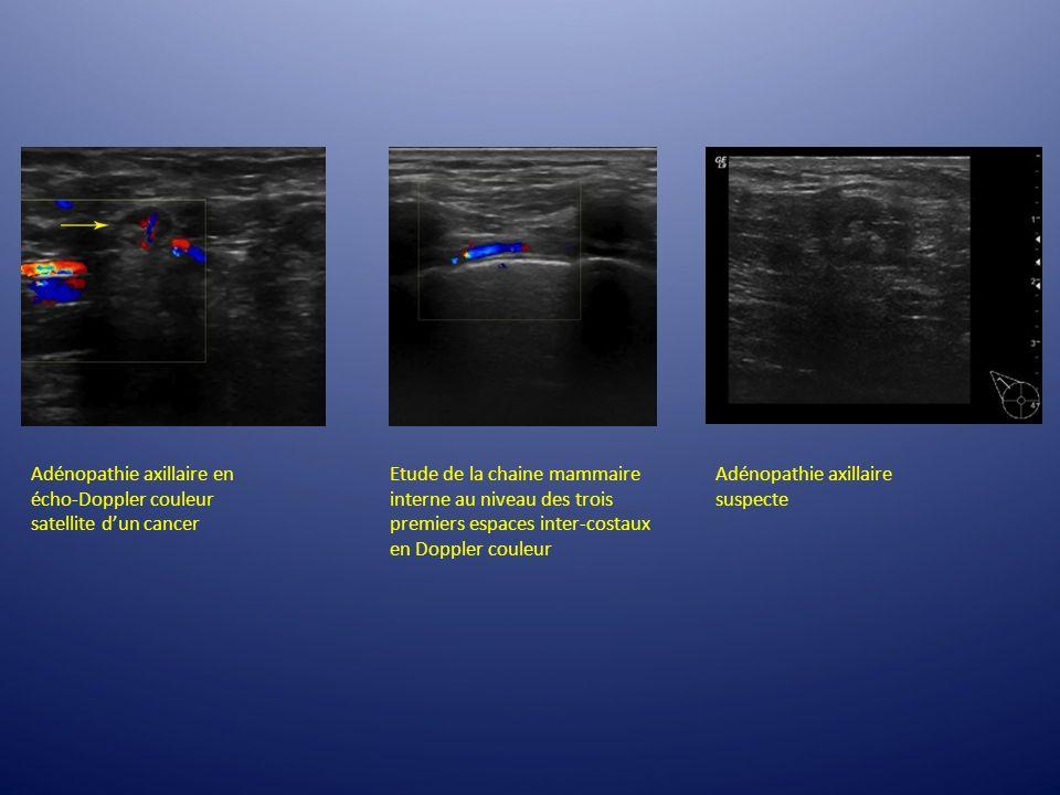 Etude de la chaine mammaire interne au niveau des trois premiers espaces inter-costaux en Doppler couleur Adénopathie axillaire en écho-Doppler couleu