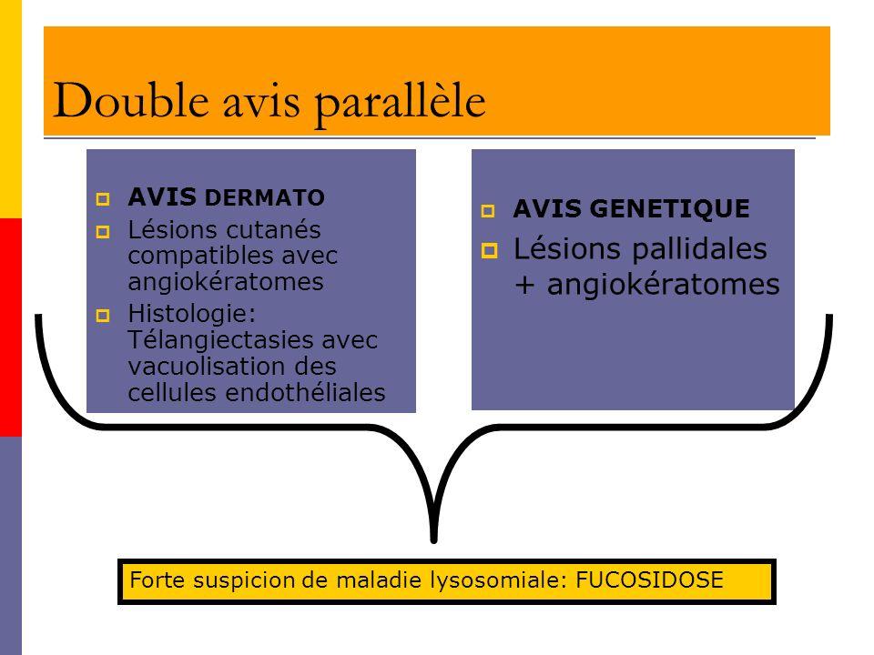 Double avis parallèle AVIS DERMATO Lésions cutanés compatibles avec angiokératomes Histologie: Télangiectasies avec vacuolisation des cellules endothé