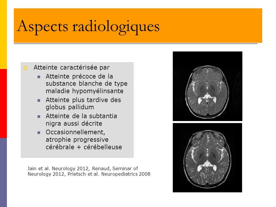 Aspects radiologiques Atteinte caractérisée par Atteinte précoce de la substance blanche de type maladie hypomyélinsante Atteinte plus tardive des glo