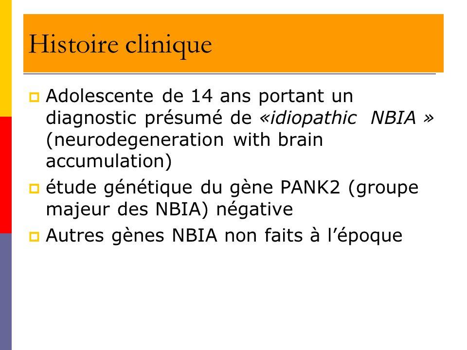 Histoire clinique Adolescente de 14 ans portant un diagnostic présumé de «idiopathic NBIA » (neurodegeneration with brain accumulation) étude génétiqu