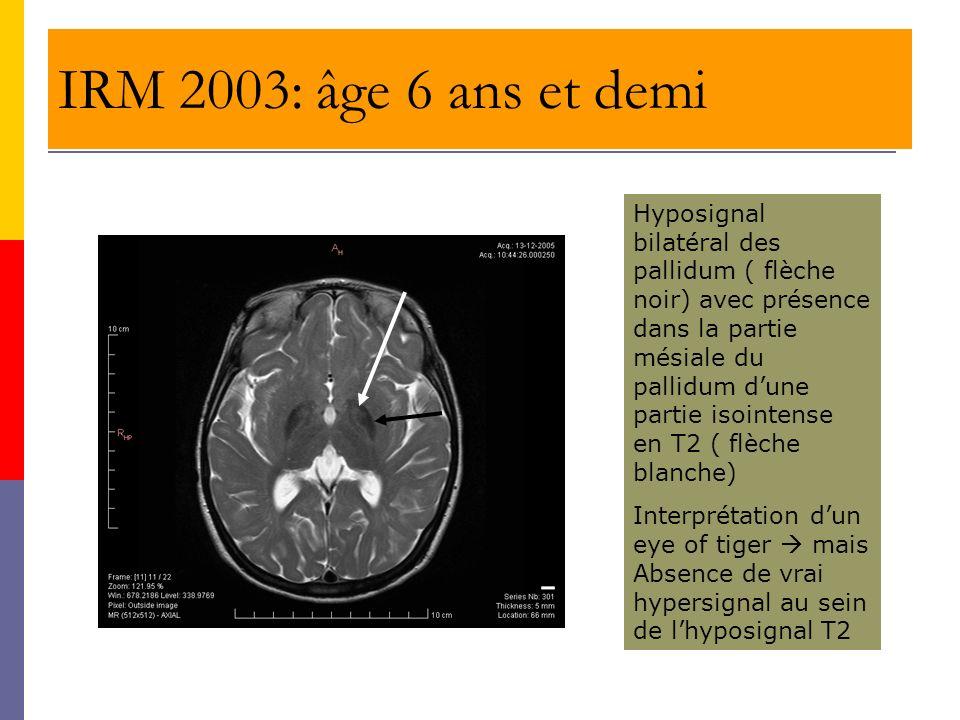 IRM 2003: âge 6 ans et demi Hyposignal bilatéral des pallidum ( flèche noir) avec présence dans la partie mésiale du pallidum dune partie isointense e