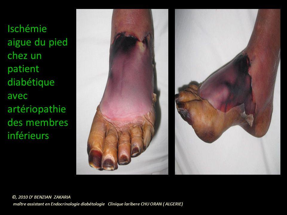 Ischémie aigue du pied chez un patient diabétique avec artériopathie des membres inférieurs ©, 2010 D r BENZIAN ZAKARIA maître assistant en Endocrinologie diabétologie Clinique laribere CHU ORAN ( ALGERIE)