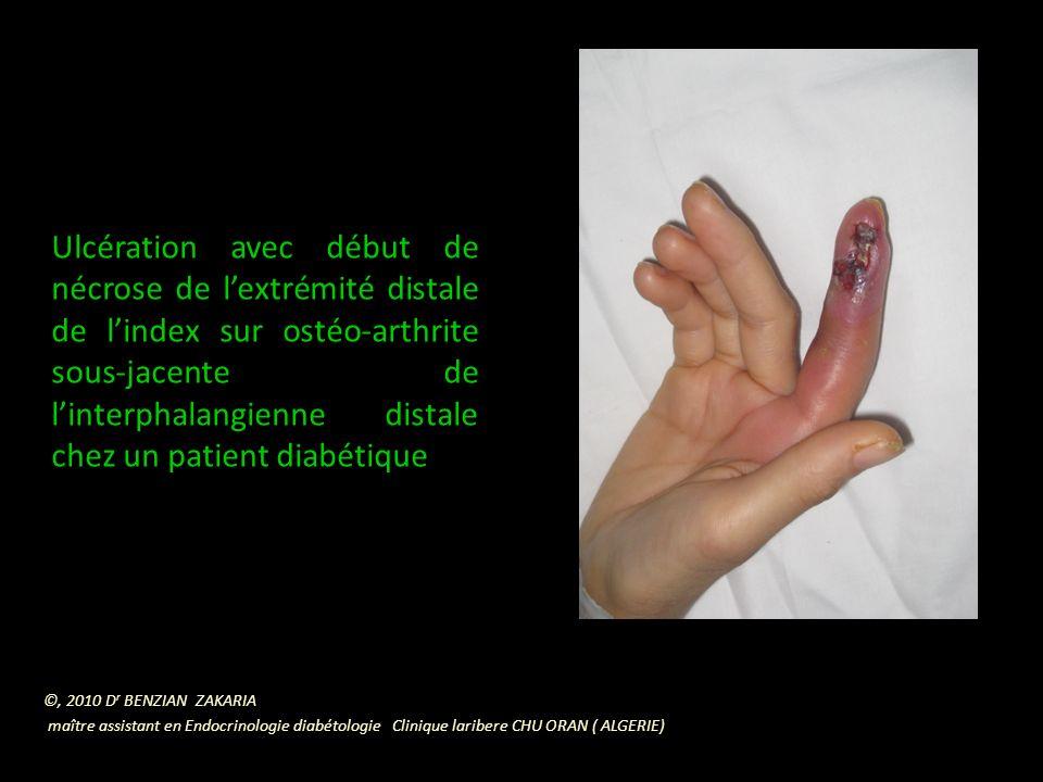 Phlegmon de lindex sur ostéite soujacente chez une diabétique ©, 2010 D r BENZIAN ZAKARIA maître assistant en Endocrinologie diabétologie Clinique laribere CHU ORAN ( ALGERIE)