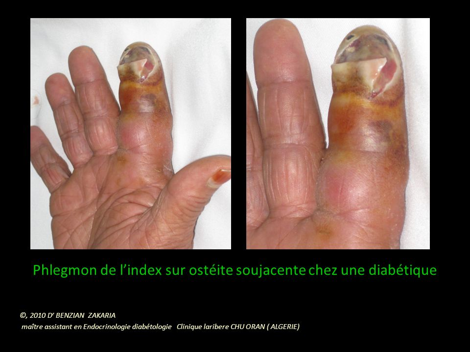 Nécrose humide des 2 premiers orteils avec aspect de « Orteil saucisse du 2 ème orteil » chez un patient diabétique.