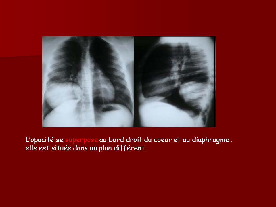 Lopacité se superpose au bord droit du coeur et au diaphragme : elle est située dans un plan différent.