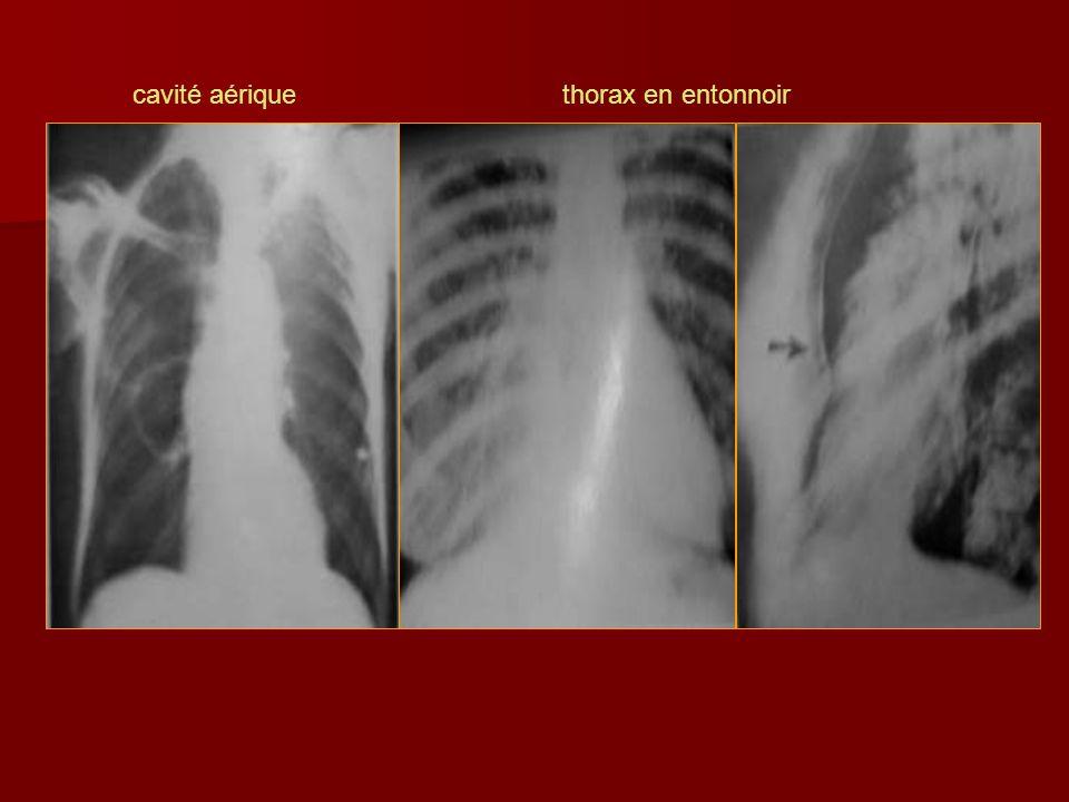 cavité aériquethorax en entonnoir