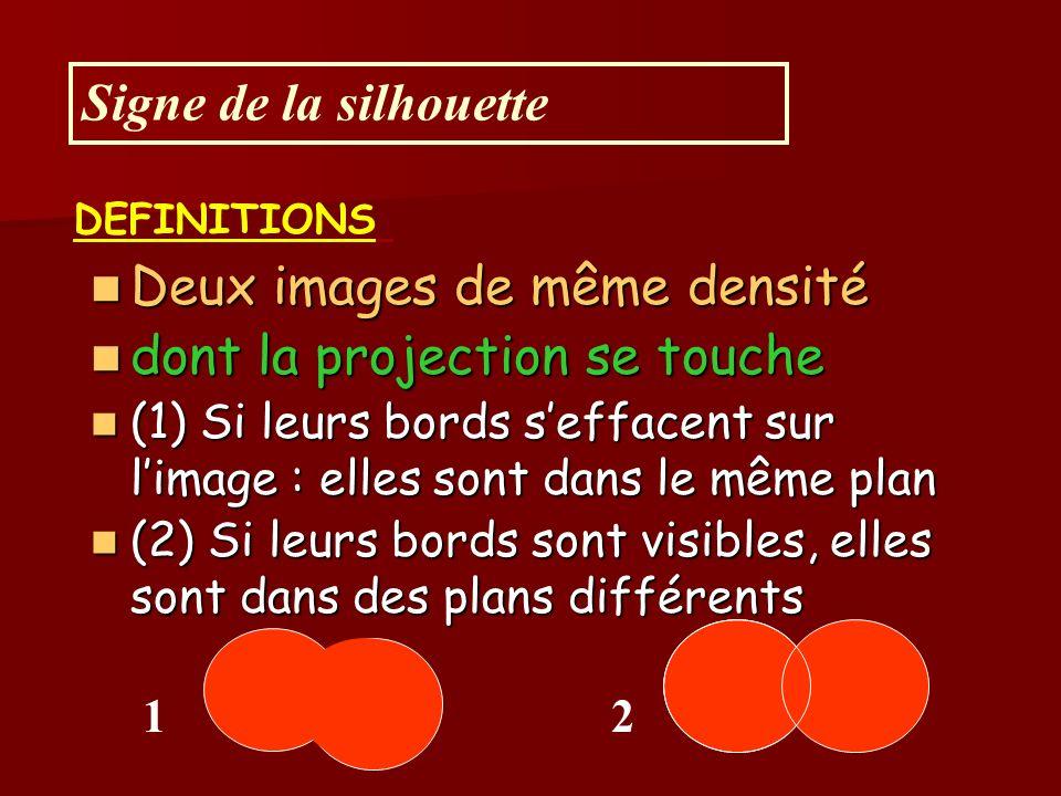 Deux images de même densité Deux images de même densité dont la projection se touche dont la projection se touche (1) Si leurs bords seffacent sur limage : elles sont dans le même plan (1) Si leurs bords seffacent sur limage : elles sont dans le même plan (2) Si leurs bords sont visibles, elles sont dans des plans différents (2) Si leurs bords sont visibles, elles sont dans des plans différents Signe de la silhouette 12 DEFINITIONS