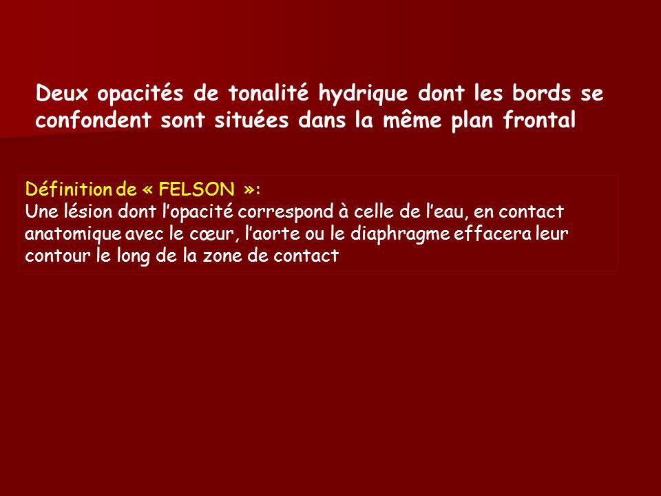 Définition de « FELSON »: Une lésion dont lopacité correspond à celle de leau, en contact anatomique avec le cœur, laorte ou le diaphragme effacera leur contour le long de la zone de contact Deux opacités de tonalité hydrique dont les bords se confondent sont situées dans la même plan frontal