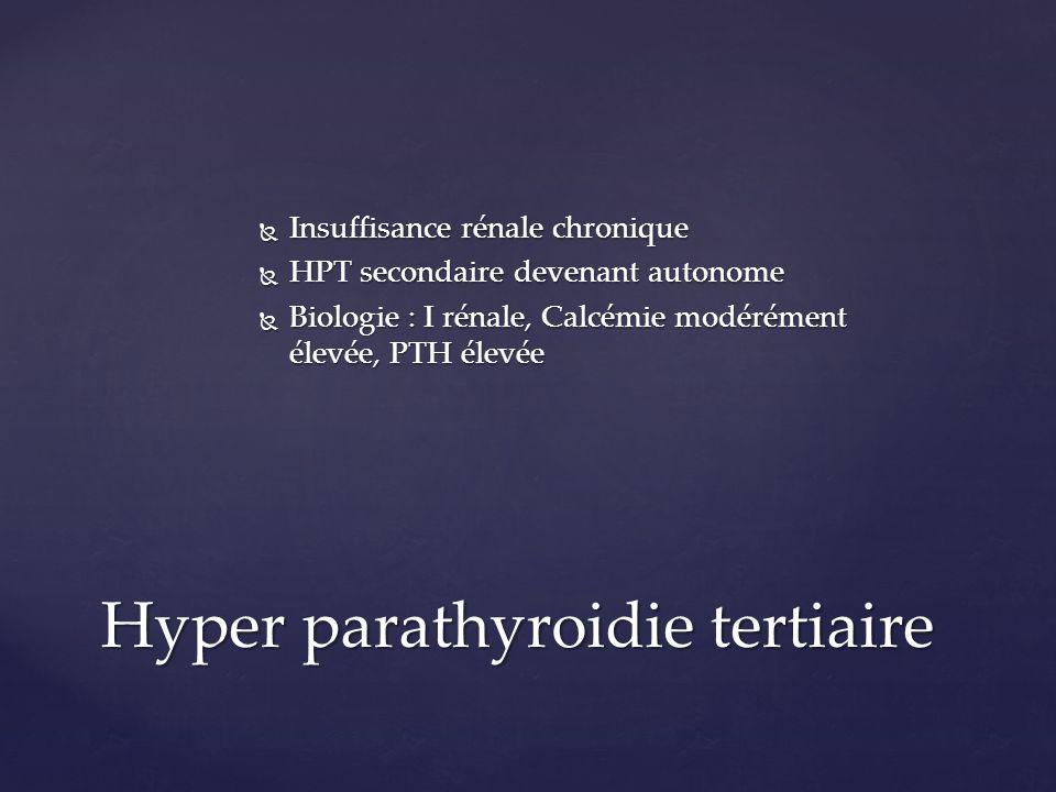 Insuffisance rénale chronique Insuffisance rénale chronique HPT secondaire devenant autonome HPT secondaire devenant autonome Biologie : I rénale, Cal
