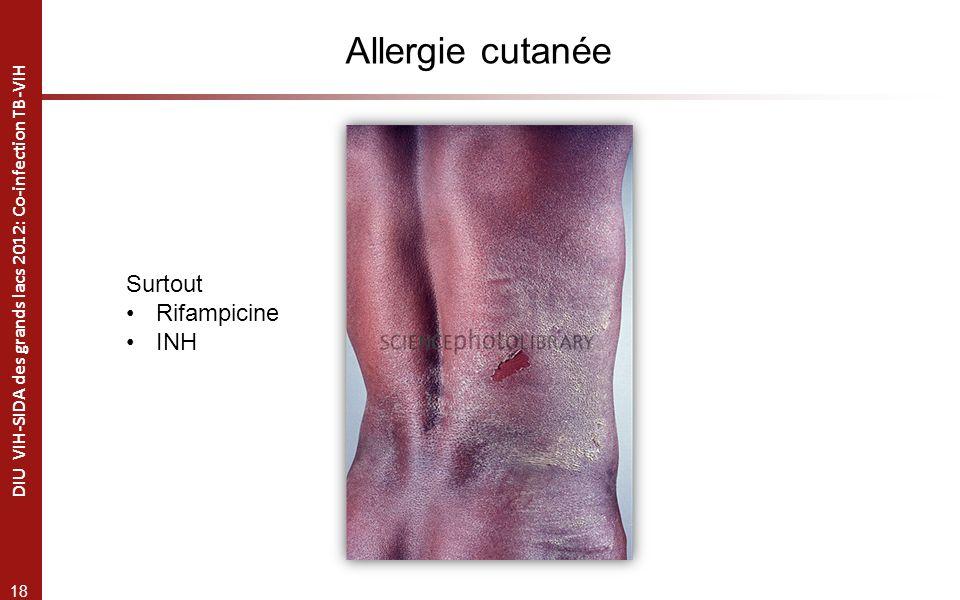 18 DIU VIH-SIDA des grands lacs 2012: Co-infection TB-VIH Allergie cutanée Surtout Rifampicine INH