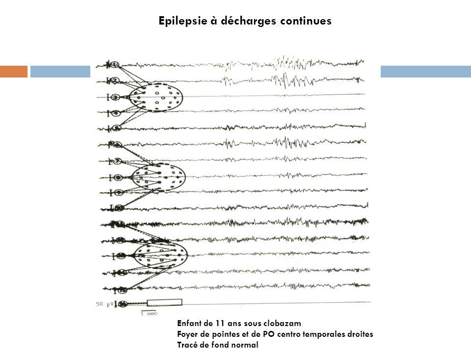 Epilepsie à décharges continues Enfant de 11 ans sous clobazam Foyer de pointes et de PO centro temporales droites Tracé de fond normal