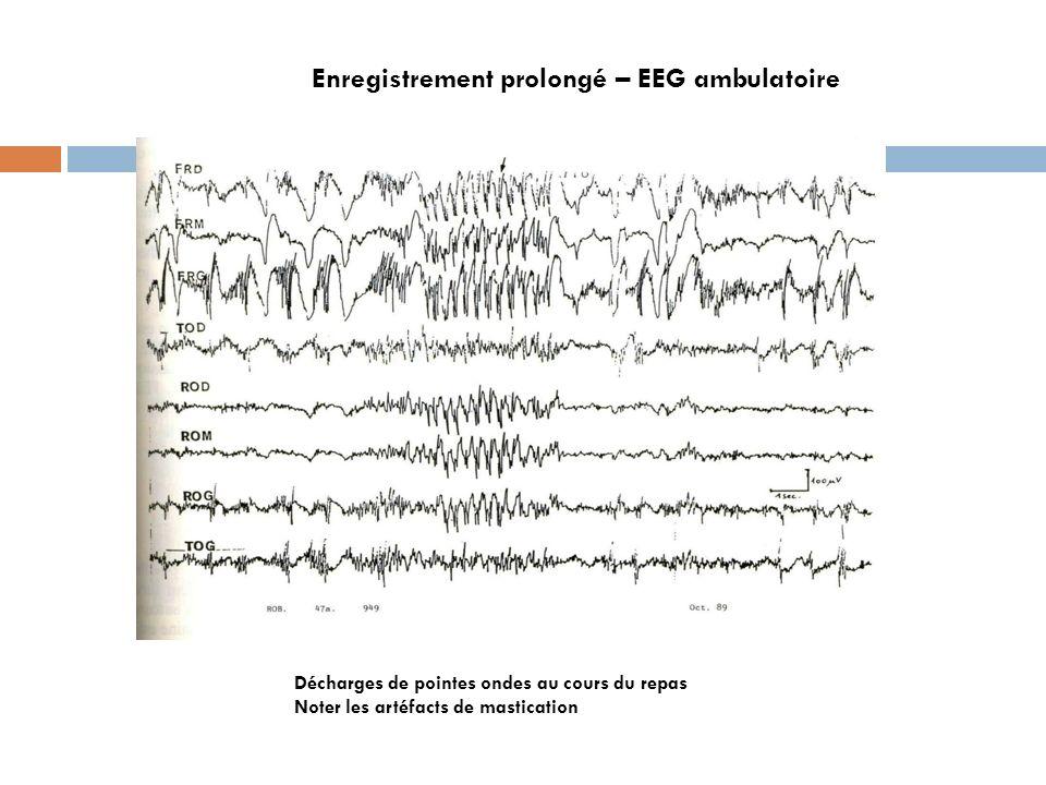 Décharges de pointes ondes au cours du repas Noter les artéfacts de mastication Enregistrement prolongé – EEG ambulatoire