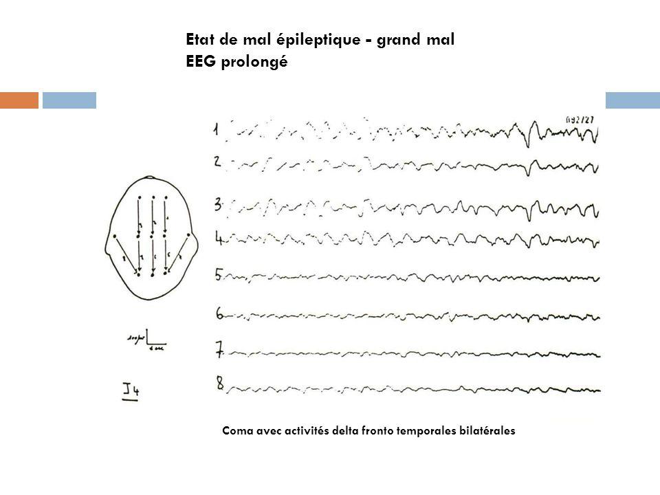 Coma avec activités delta fronto temporales bilatérales Etat de mal épileptique - grand mal EEG prolongé
