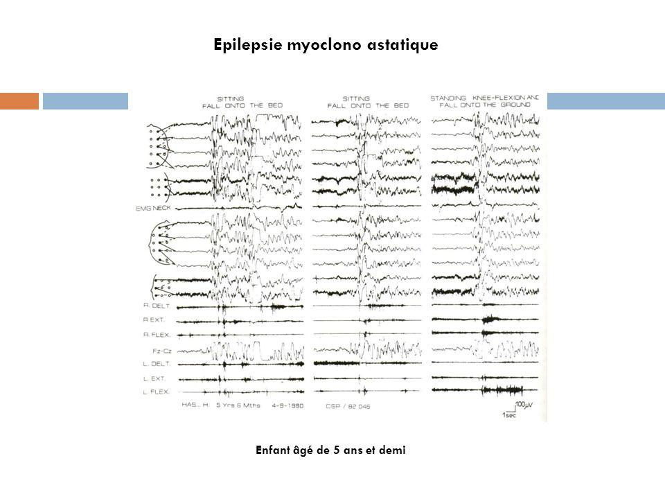 Epilepsie myoclono astatique Enfant âgé de 5 ans et demi