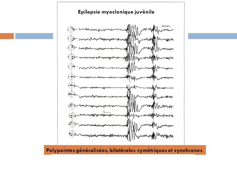 Epilepsie myoclonique juvénile Polypointes généralisées, bilatérales symétriques et synchrones
